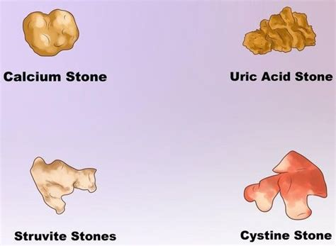 does high urid acid cause bladder infection picture 1