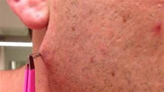 herpes and shaving bikini line picture 6