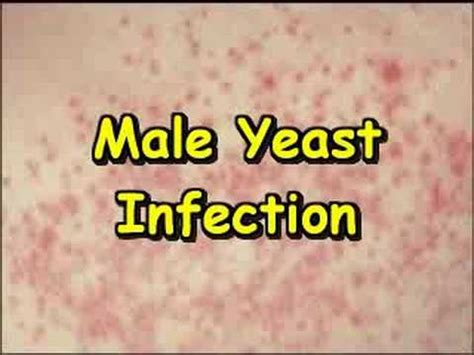 yeast infections men picture 15