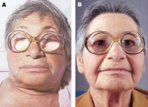 galactorrhea thyroid disease picture 1