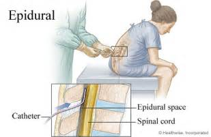 lumbar spinal search puncture pages catheter tap bladder picture 19
