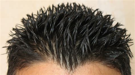 clobex shampoo and hair loss picture 6