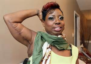 no scar weight loss surgery picture 2