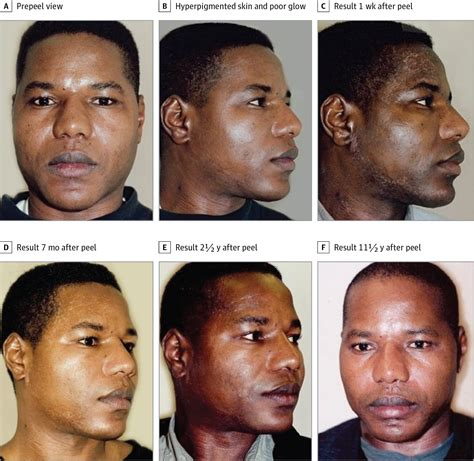 trichloroacetic face l for dark skin picture 1