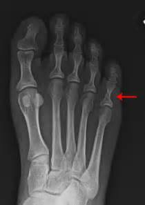 most common injuries to fifth metatarsal phalangeal joint picture 5