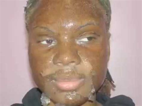 chemical ls on african american skin picture 14