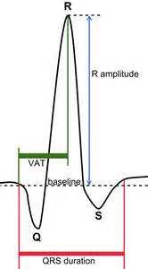 blood pressure diastolic systolic difference normal abnormal picture 10