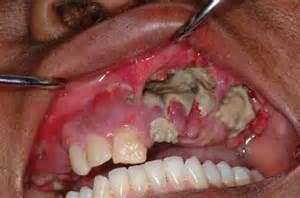 drug for sagging skin picture 17
