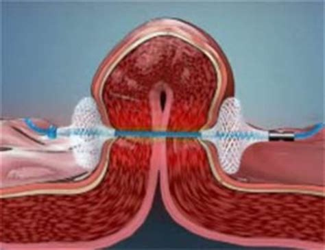 new weight loss pill that works like stomach surgery picture 14