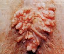 warts on vagina picture 14