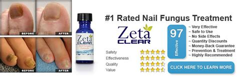how much does zetaclear cost picture 2