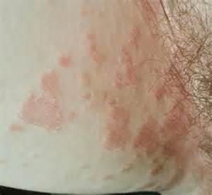 inner thigh pain and herpes picture 3