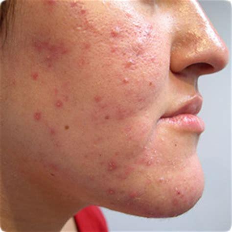 skin acne picture 7