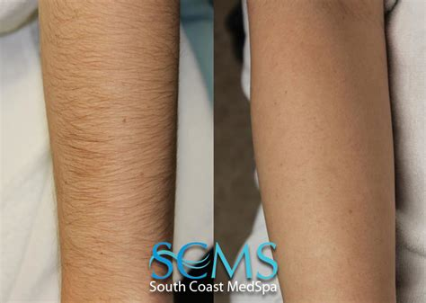 forearm hair removal picture 1