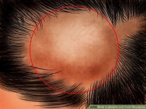 bacterial menigitis and hair loss picture 7