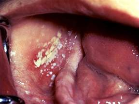 where do yeast infections come from picture 1