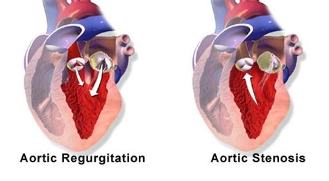 Aortic stenosis blood pressure readings picture 14