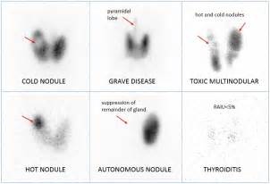 glucophage and thyroid scan and uptake picture 1