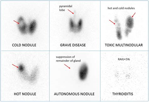 abnormal thyroid scan and uptake picture 1