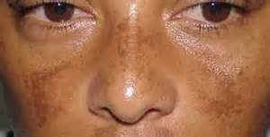 disease that takes away pigment in skin picture 1