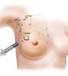 what does prostate ca what does breast cancer picture 14