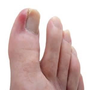 stop toenails growing picture 1