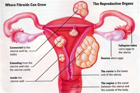 what supplement cause menstrual bleeding picture 18