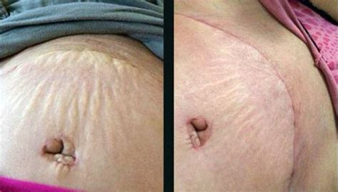 can a tummy tuck get rid of stretch marks picture 1
