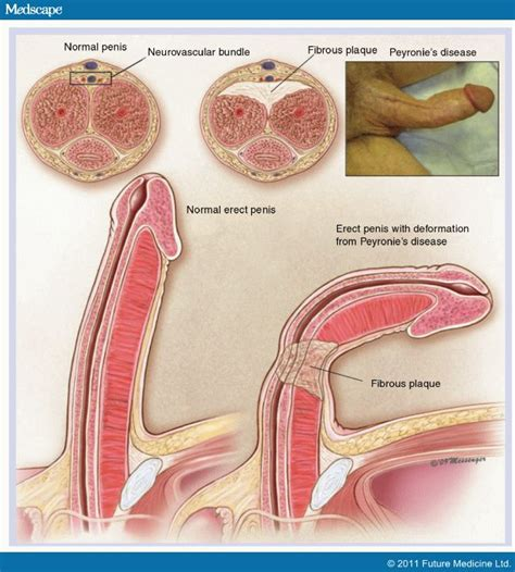 curved penis medical pictures of picture 10
