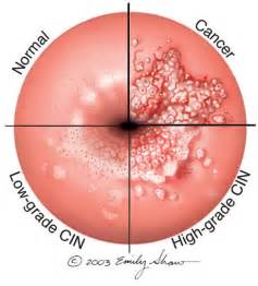 genital warts on the cervix picture 1