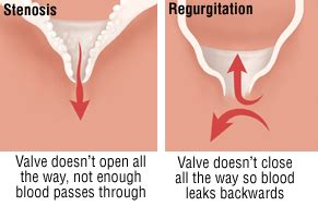 can leaky heart valves stop an erection pills picture 4