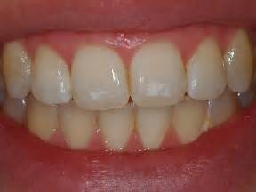 can weak spots in teeth be fixed picture 5