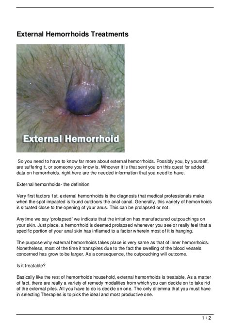 hemorrhoid relief remedies picture 11