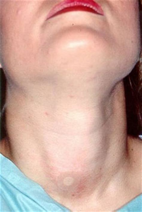 biopsy of the thyroid picture 10