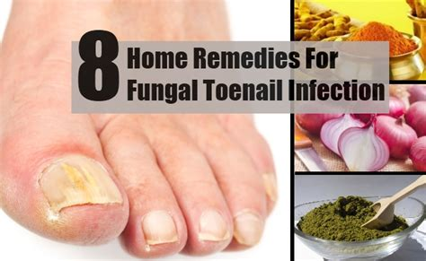 vitamins for nail fungus picture 6