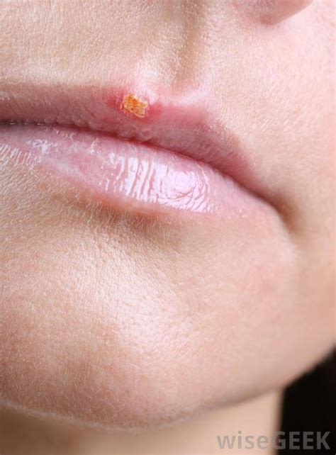 cold sores herpes picture 3