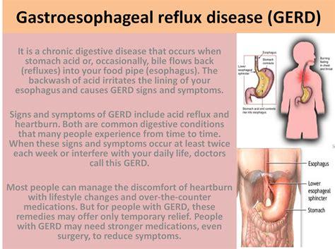 ascid reflux diet picture 9