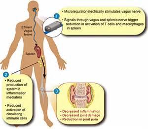 colon nerve problems picture 2