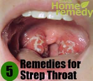 herbal remedies strep throat picture 1