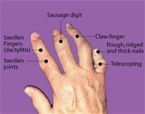 body cleanse swollen fingers picture 15