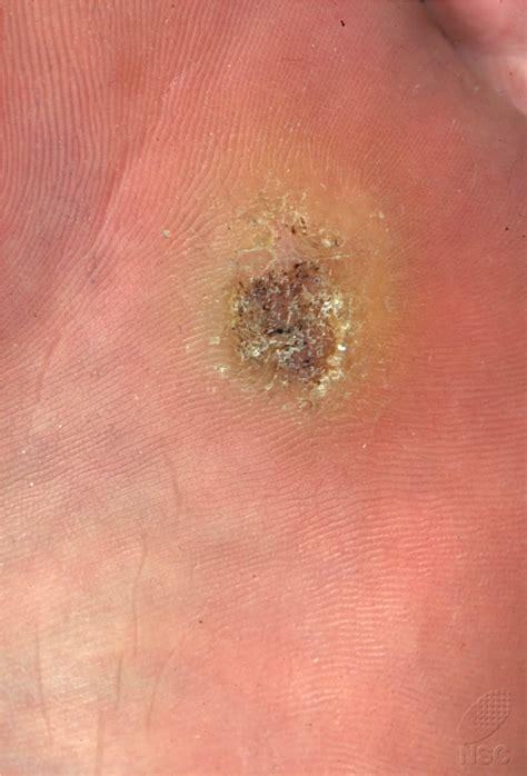 wart virus picture 1