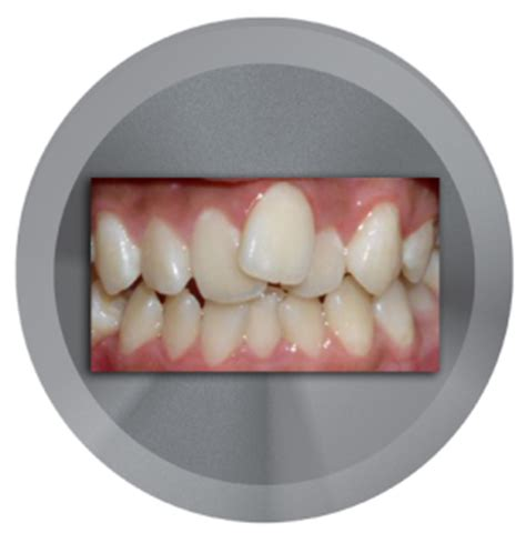 correcting crooked teeth picture 3