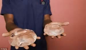 breast enhancement nz picture 2