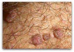 how to get rid of ing warts picture 3
