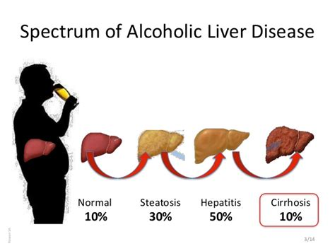 percentage of alcoholics with cirrhosis liver picture 1