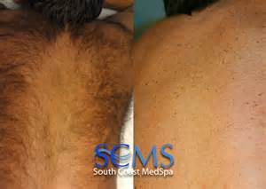 orange county laser hair removal picture 3