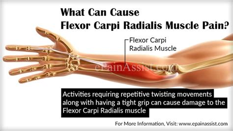 arm and muscle pain picture 2