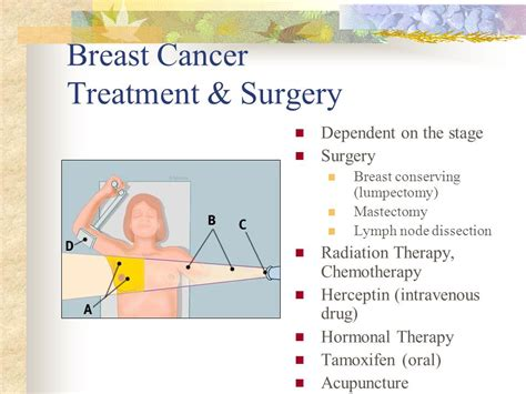 cancer treatment appetite stimmulant drugs picture 13