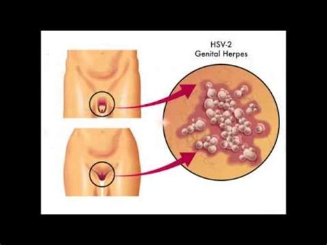 herpes cure tagalog picture 13