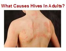 what causes the hives picture 1